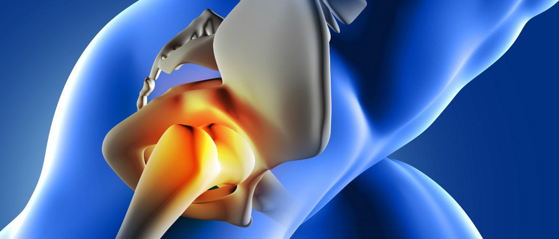 artrosis y protesis de rodilla